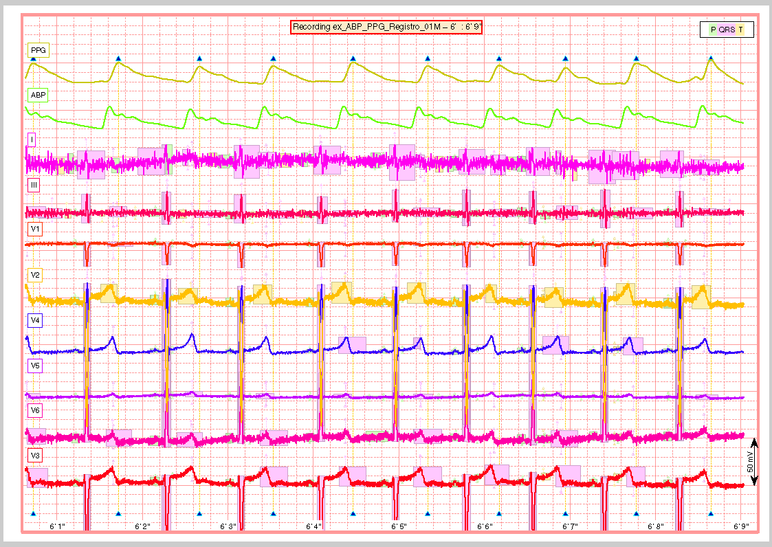 ecg-kit - A Matlab toolbox for cardiovascular signal processing